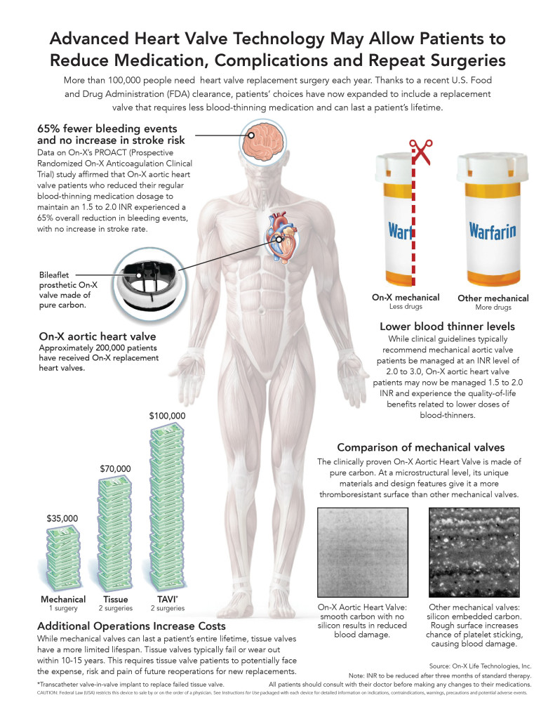 On-x_heart_valve_Infographic_highres